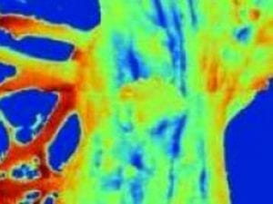 Advanced Thermal Tree Imaging